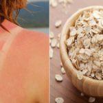 Cách phục hồi da bị cháy nắng