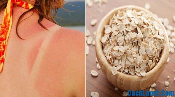 Cách phục hồi da bị cháy nắng như thế nào? Bí quyết phục hồi làn da bị cháy nắng nhanh, hiệu quả nhất